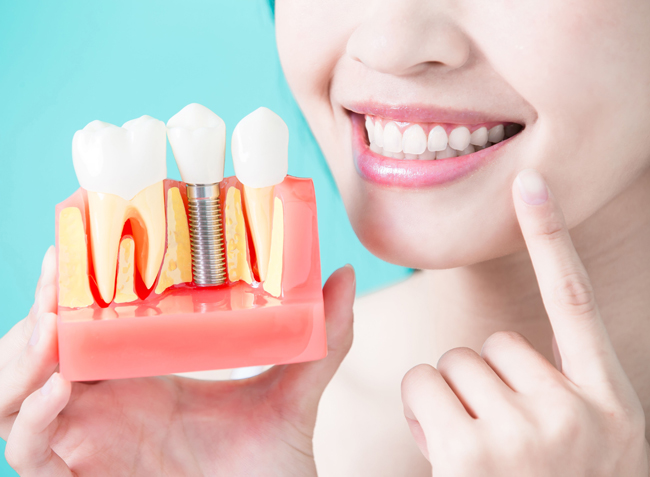 Dental Implants Have Become A Go To Option