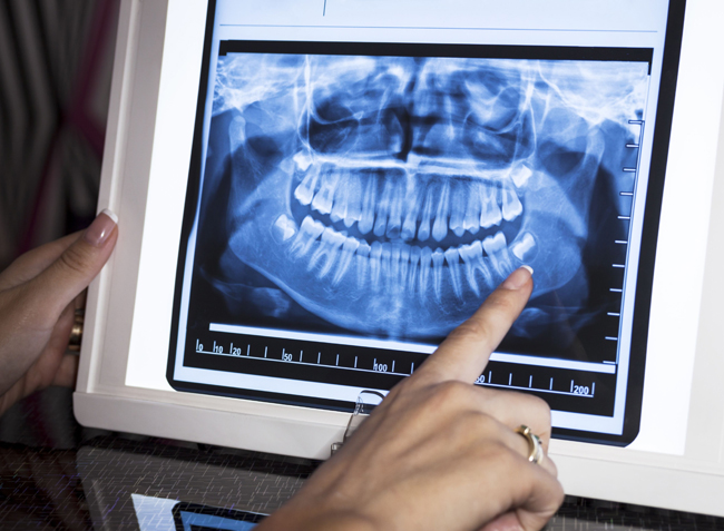 Why Would Dental X Rays Be Needed