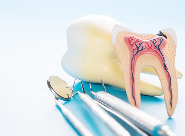 Why Would Root Canals Be Needed