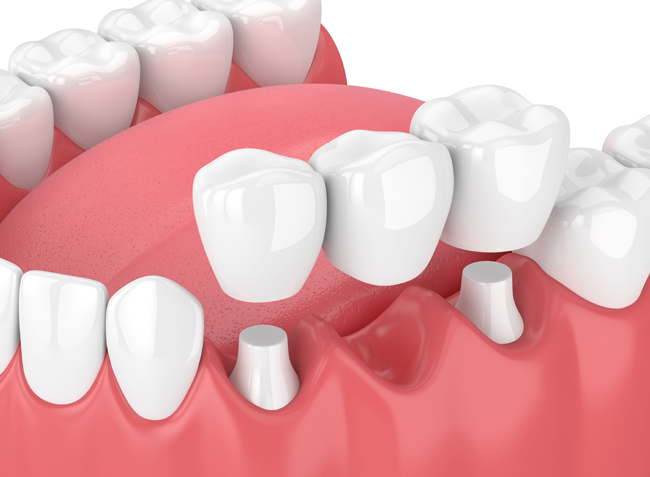 Why Would A Dental Bridge Be Necessary