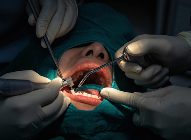 Why Would A Periodontal Scaling And Root Planing Be Needed